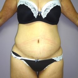 abdominoplasty-after